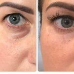 Глаз до и после филлера