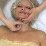 Женщина на кушетке, которой делают вакуумный массаж подбородка