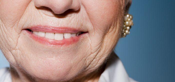 Морщины в области губ
