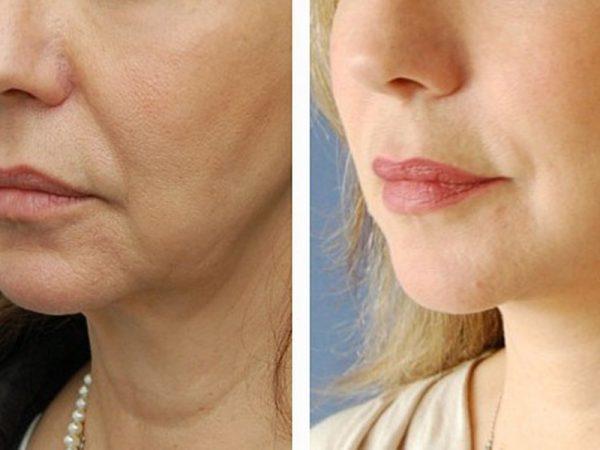До и после установки косметических нитей