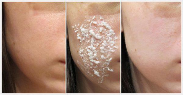 Эффект после 1 применения рисовой маски