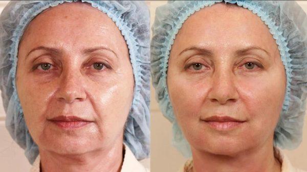 До и после подтяжки лица жидкими нитями
