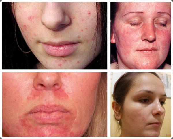 Примеры аллергических реакций на лице