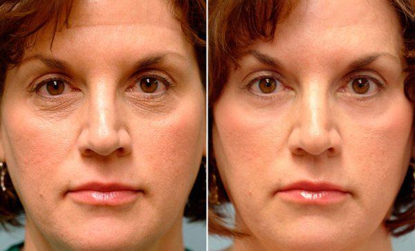 Женское лицо до и после омоложения с помощью мезококтейля