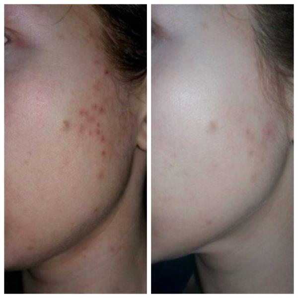 Кожа девушки до использования Куриозина против прыщей и после 1,5 месяцев его применения