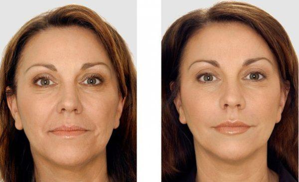 Лицо до и после массажа Кобидо