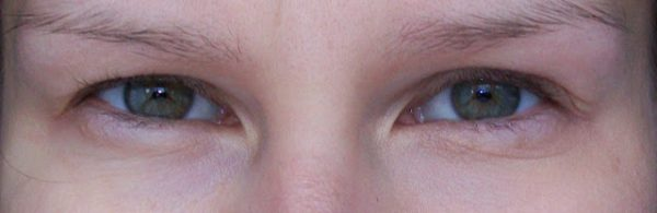 BB Cream Ролик для глаз до и после