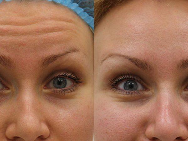 До и после инъекций Ботокса