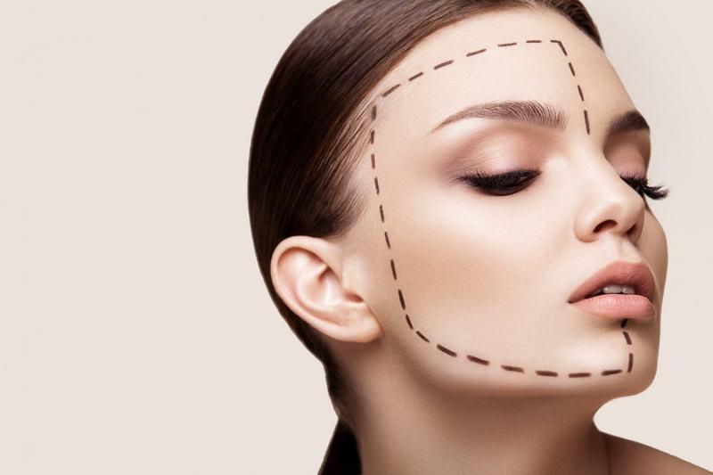 Круговая подтяжка лица: описание операции и её разновидности