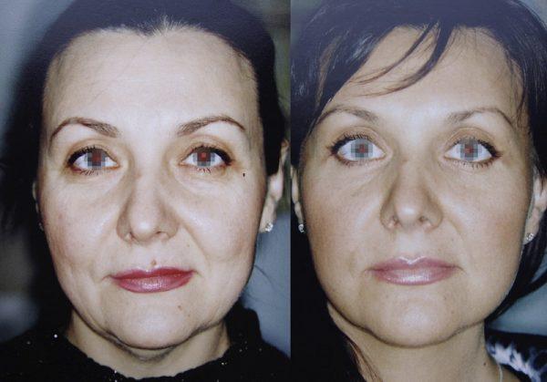 Результат круговой подтяжки лица