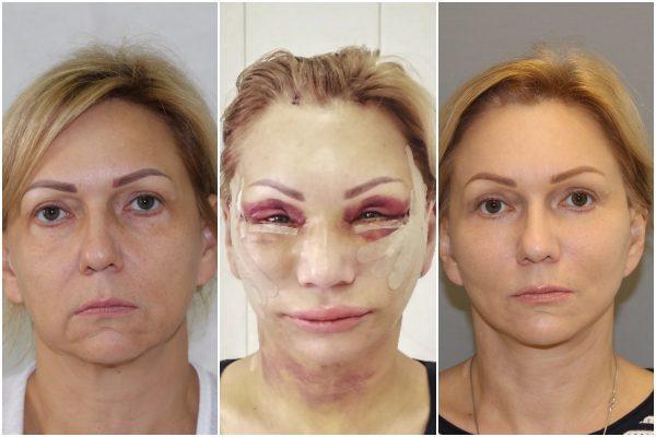 Изменение внешности после фейслифтинга