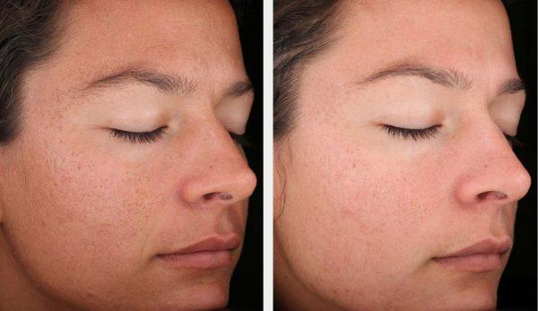 Биоревитализация лица до и после