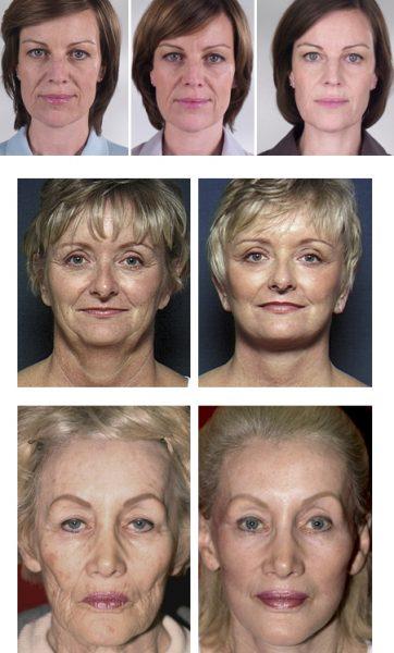 Женщины до и после подтяжки лица