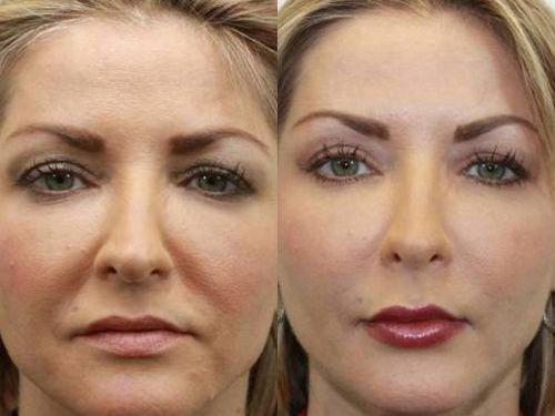 Лицо до и после липофиллинга