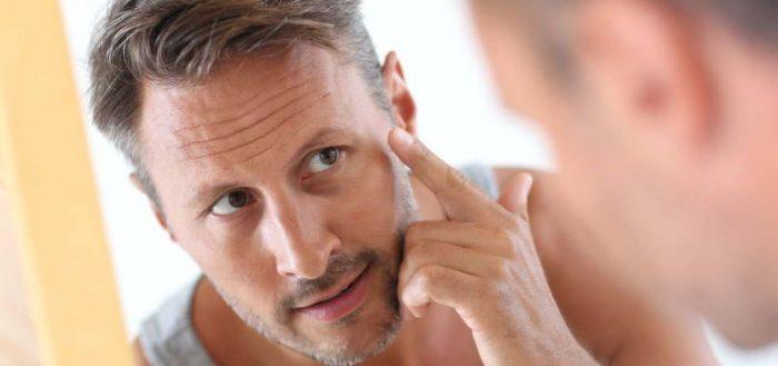 Морщины на лице у мужчины