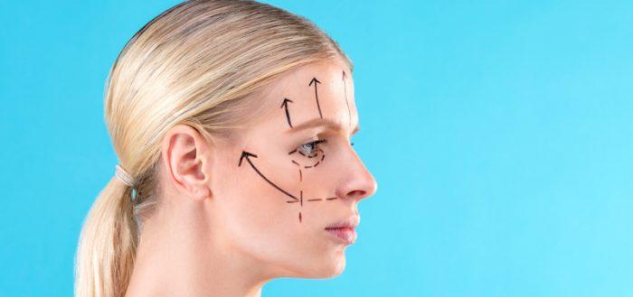 Эндоскопическая подтяжка лица