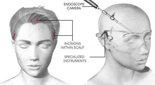 Схема эндоскопической подтяжки лба и бровей