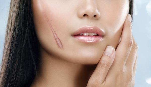 Кремы и мази для рассасывания шрамов, рубцов и растяжек. Область применения, эффект.