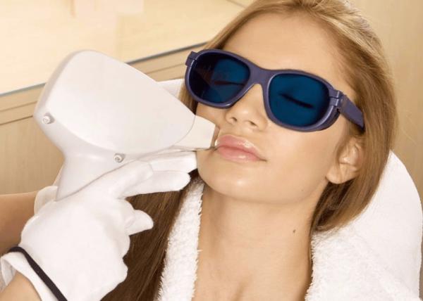 Проведение лазерной эпиляции на лице