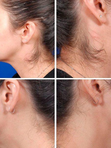 Результат энзимной эпиляции — замедление роста волос
