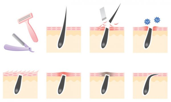 Схема возникновения вросших волос