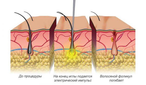 Схема электроэпиляции