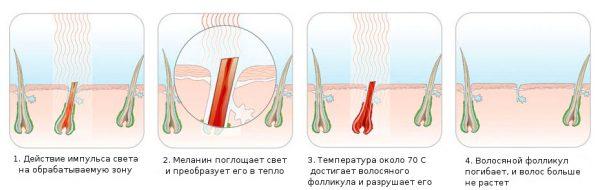 Механизм действия фотоэпиляции