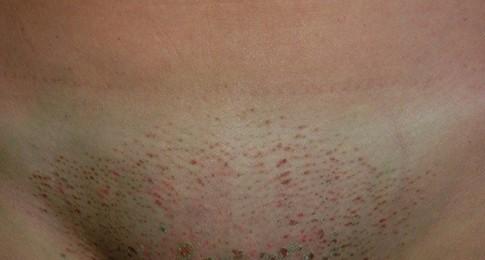 корочки на коже в период заживления кожи после электроэпиляции