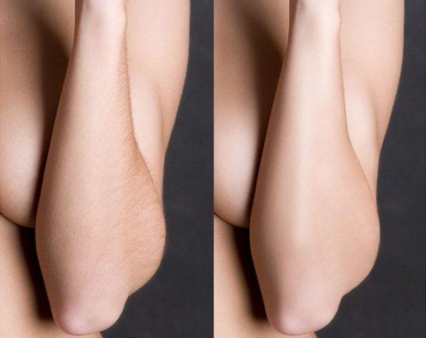 Депиляция рук воском: до и после