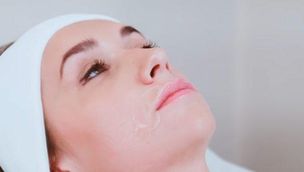 Процедура лазерной эпиляции нагревает кожу и волоски