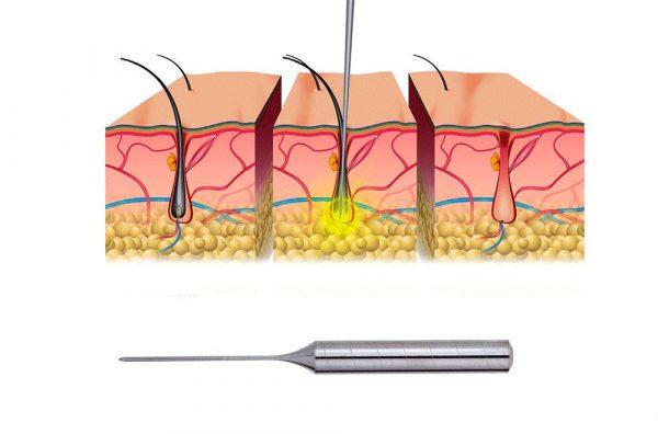 введение иглы-электрода в фолликул волоса