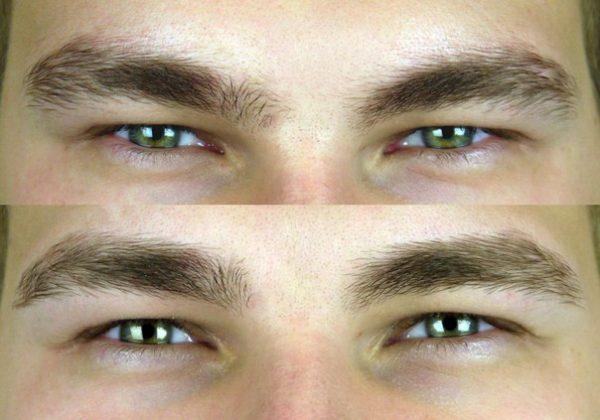 Коррекция формы бровей: до и после