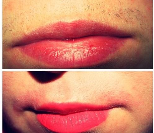 верхняя губа до и после восковой эпиляции