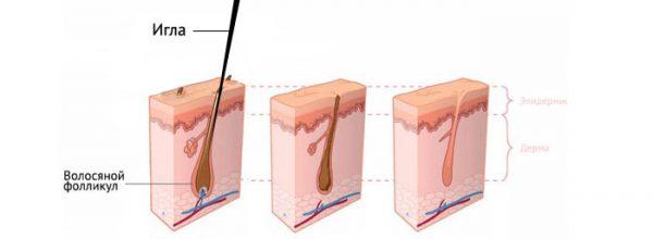 Иллюстрация процесса электроэпиляции