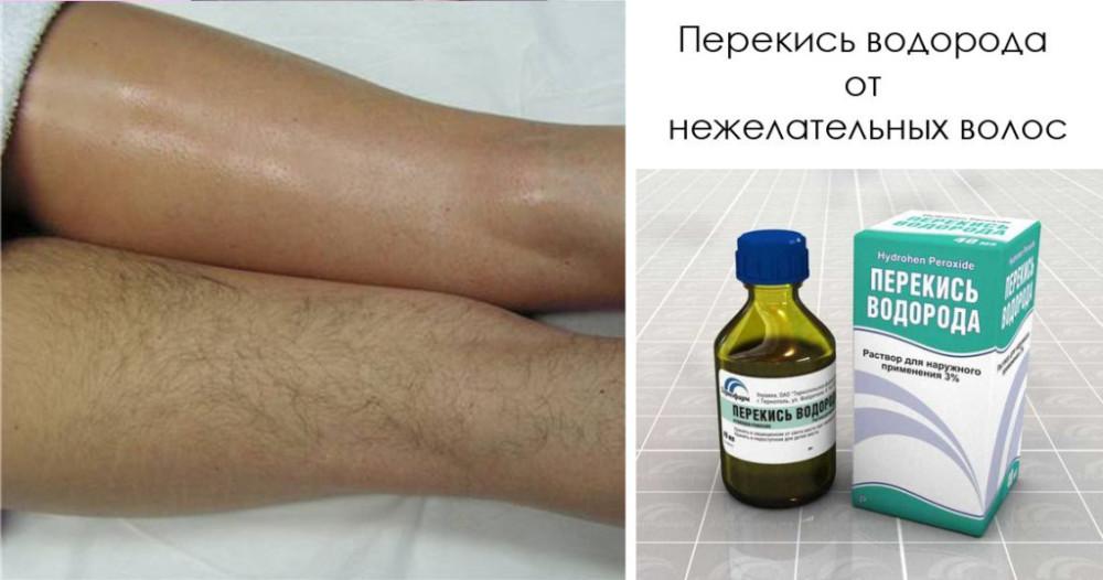 Средство от волос на ногах в домашних условиях 481