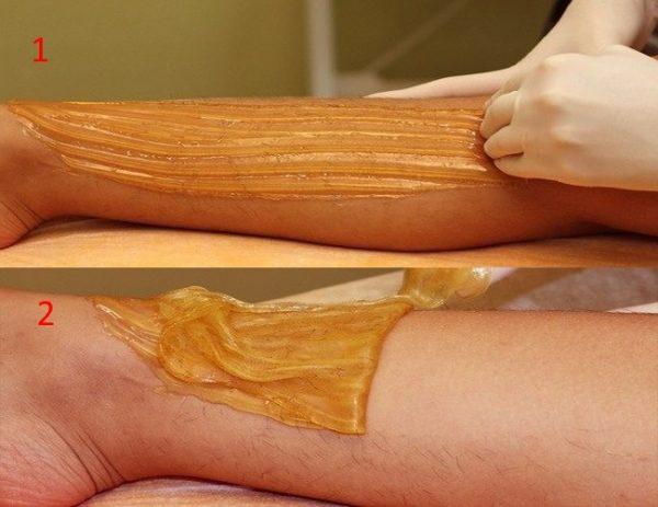 Процедура шугаринга на ноге
