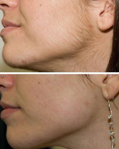 Шугаринг на лице: до и после