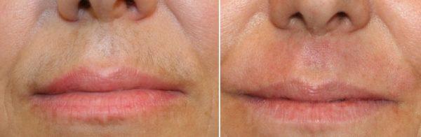 Шугаринг над верхней губой: до и после