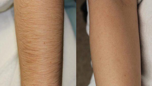 Шугаринг рук: до и после