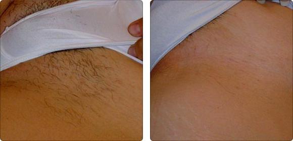 Удаление волос в области бикини: до и после