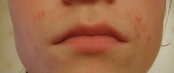 Аллергия после химической депиляции кремом