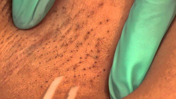 Чёрные точки на коже после лазерной эпиляции