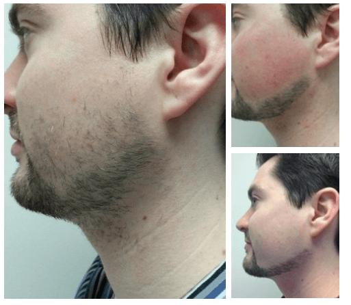 Депиляция для мужчин на лице