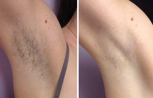 Фото подмышек до и после лазерной эпиляции