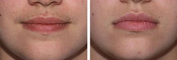 Депиляция «усиков» кремом (до и после)