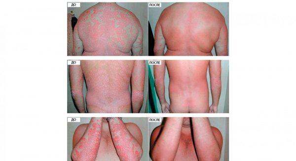 Кожа больного псориазом до и после применения масла ши