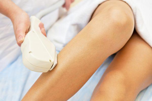 Проведение сеанса лазерной эпиляции ног