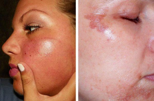 Покраснение и раздражение кожи