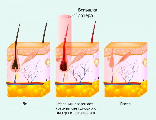 Схема действия диодного лазера