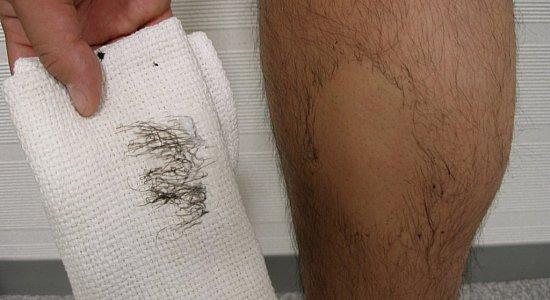 Удаление мужских волос кремом
